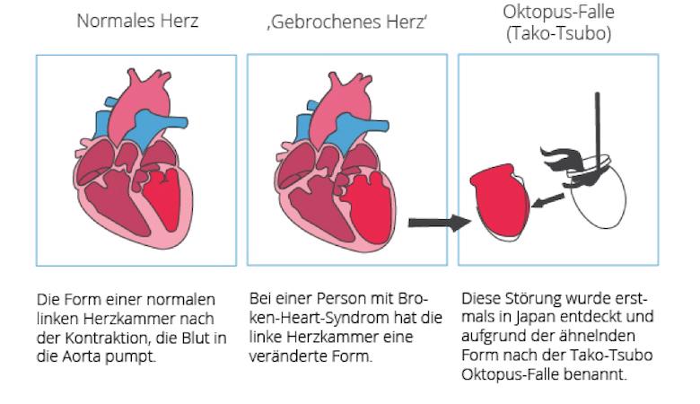 Broken Heart Syndrome - Tako-Tsubo-Kardiomyopathie (TTC)